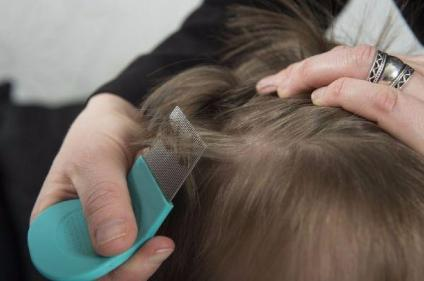Experts issue warning over 'indestructible' super lice