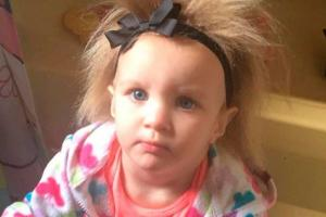 People accused me of neglecting her: Mum shamed for tots uncombable hair